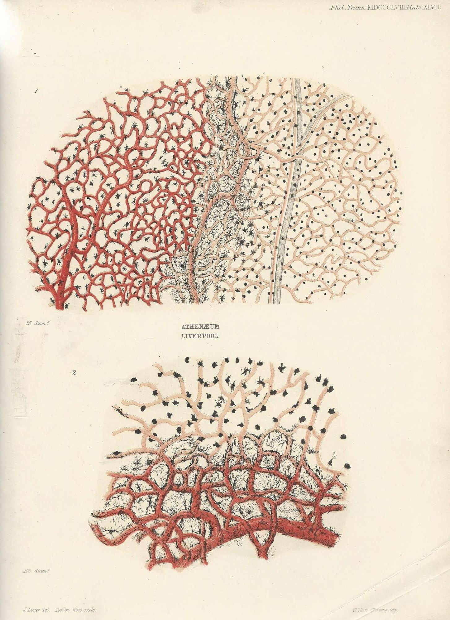 Inflammation An Inquiry Regarding The Parts Of The Nervous System