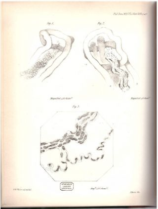 """""""Experiments on the Section of the Glossopharyngeal and Hypoglossal Nerves of the Frog, and observatons of the alterations produced thereby in the Structure of their Primitive Fibres"""" (Philosophical Transactions of the Royal Society of London, Vol. 140 for the Year 1850 Part II, pp. 423-429)"""